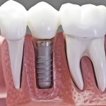 Affordable dental implants for all ages