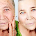 Non-invasive skin rejuvenation