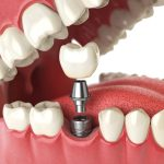 Do same day dental implants cost more?